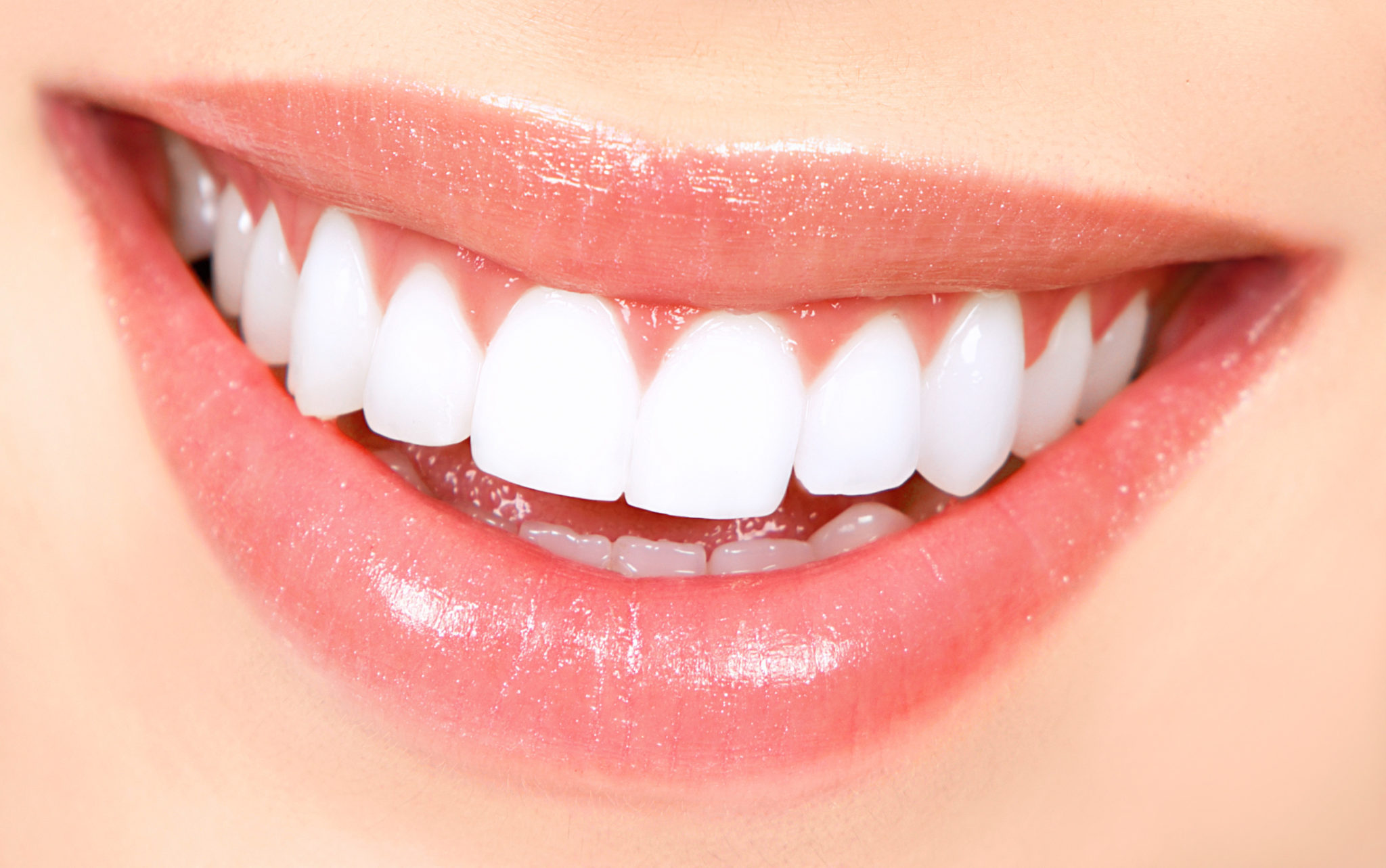 Teeth Whitening 101: What you need to know before getting a treatment